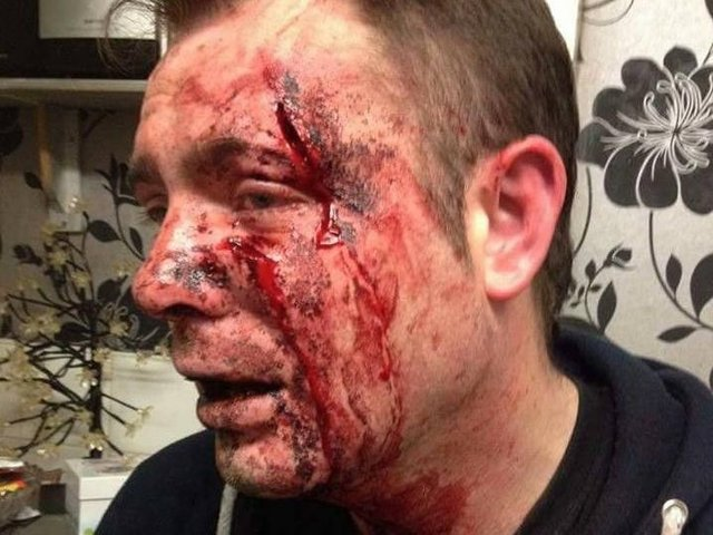 WARNING - GRAPHIC CONTENT: Man 'stabbed' in face during
