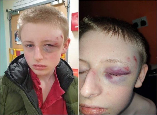 Leo Bates suffered facial injuries in the alleged assault.